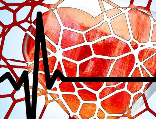 Peripheral Artery Disease; The Common, Yet Serious Disease