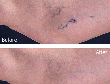 Vein before and after photo